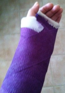 purple cast